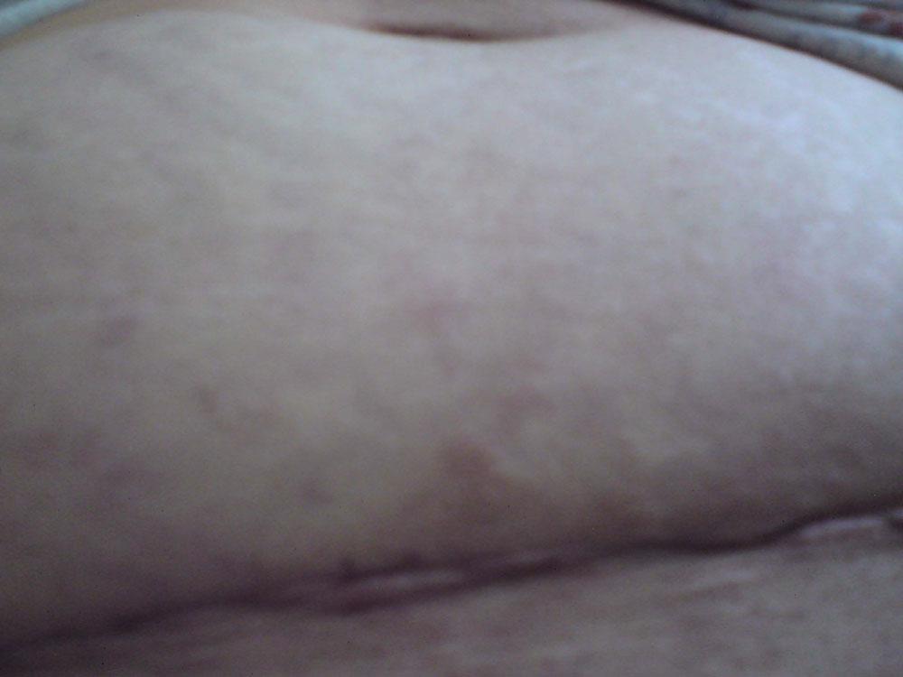 brzuch po 2 cesarkach